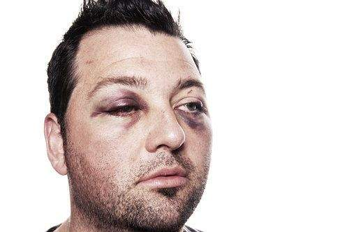 How to Get Rid of a Black Eye Naturally and Effectively
