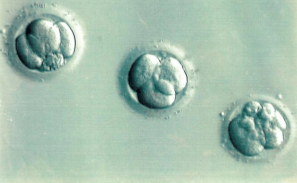 Which is Better? Fresh Vs. Frozen Embryo Transfer for IVF