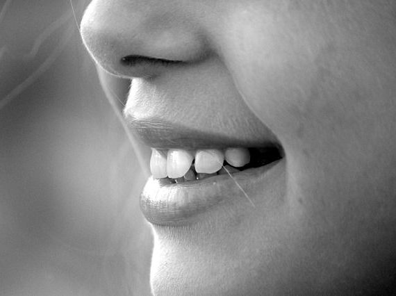 5 Reasons to Choose Clear Aligners to Straighten Your Teeth
