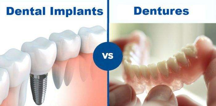 Dental Implant Bridges v/s Dentures