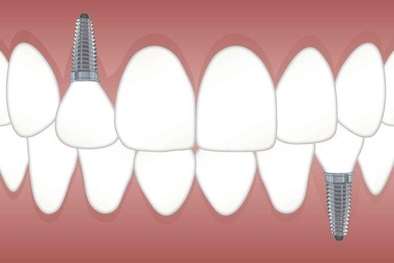 Everything you need to know about dental implants