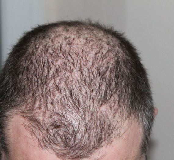 What are Early Signs of Balding and How to Stop Them