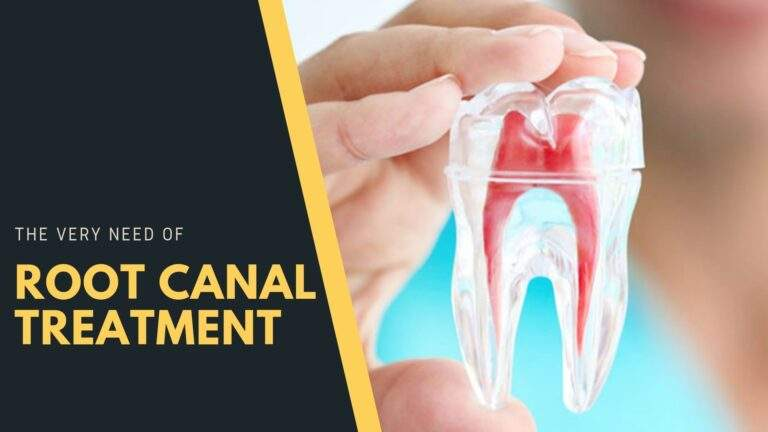The very need of Root Canal Treatment