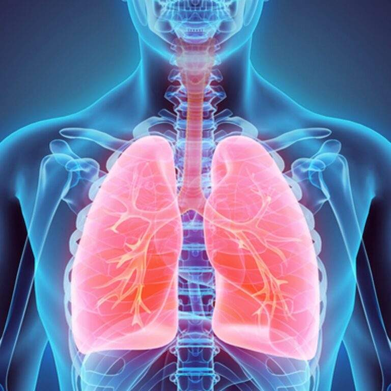 Treat Your Lungs as Carefully as Your Heart