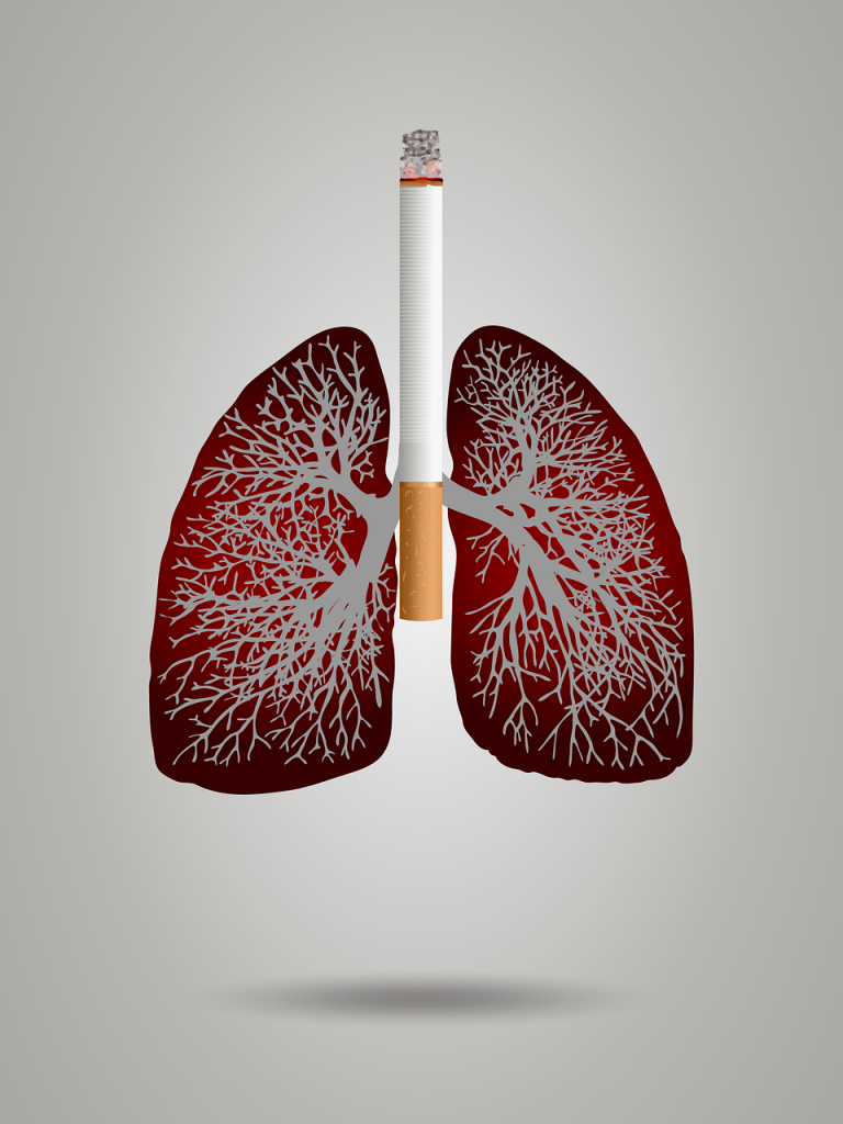 Know About Lung Cancer Symptoms and Categories
